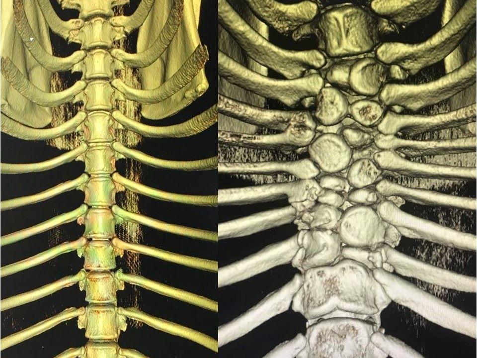 Bildvergleich von Brustwirbelsäulen